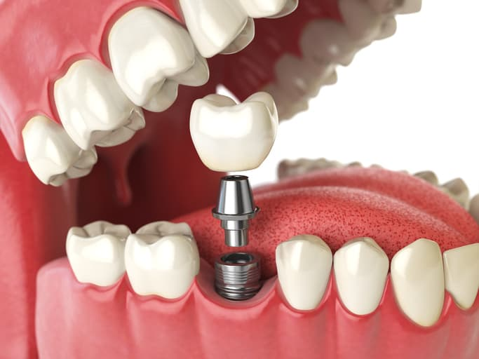 dental implants reviews in Yakima